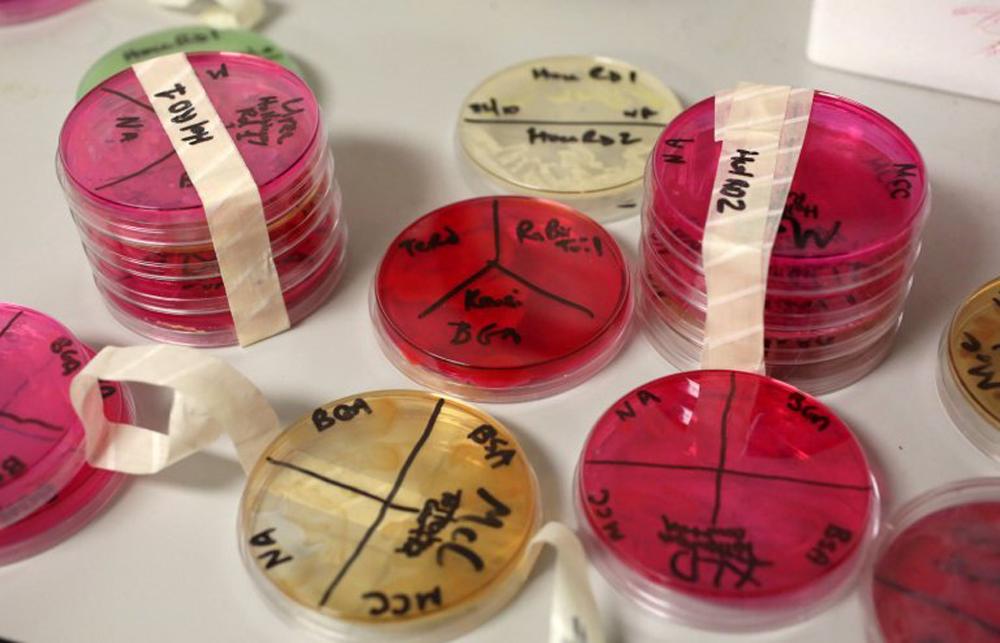 Petri csészékben vezetett tesztek többféle veszélyes baktériumot mutatott ki. / Fotó: metro.co.uk